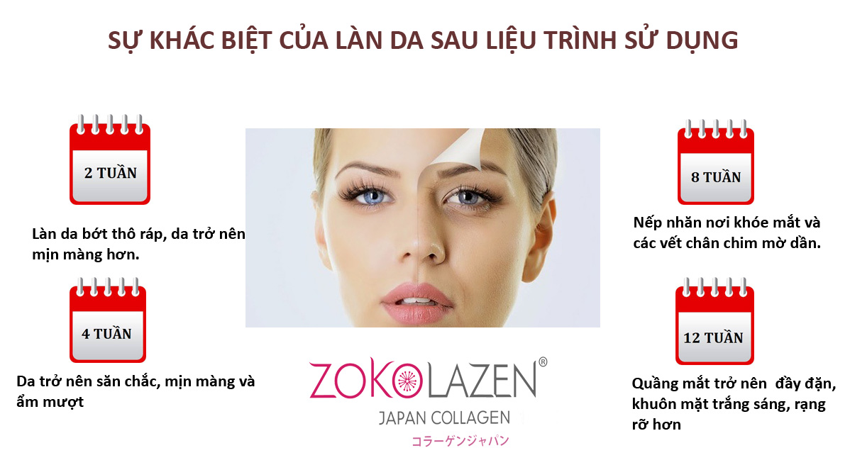 collagen-zokolazen