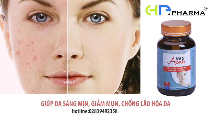 vien-uong-giam-mun-neo-acne