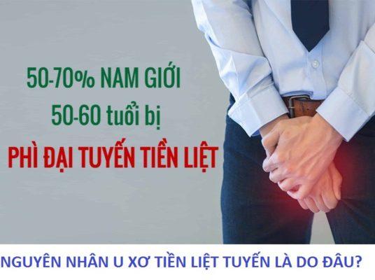 nguyen-nhan-u-xo-tien-liet-tuyen 3